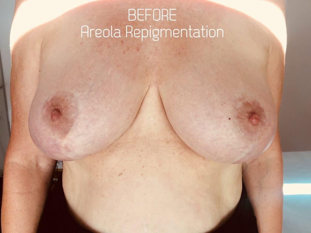 Before - permanent Areola Repigmentation