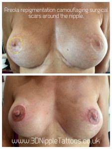 Permanent Areola repigmentation and scar camouflage after breast augmentation