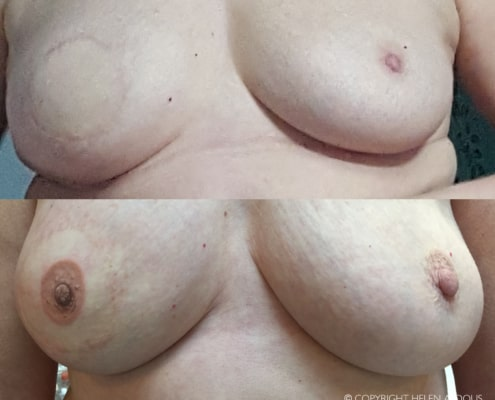 3D Nipple Tattoos Before & After Photos