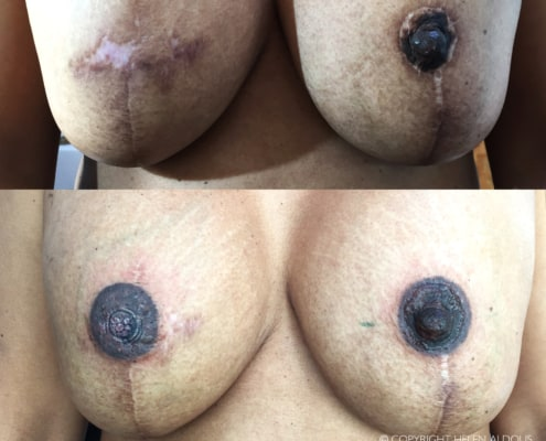 areola scar restoration before & after
