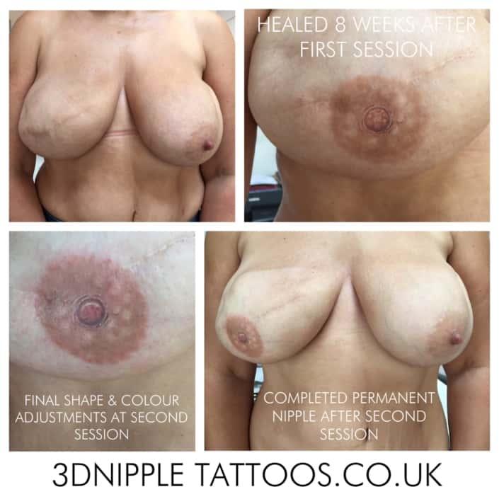 3D Nipple Tattoo Process