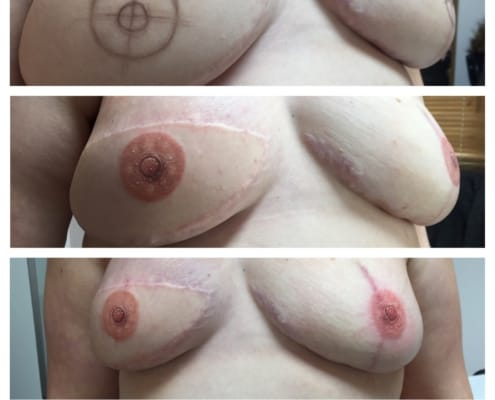 3D Nipple Tattoo Before & After