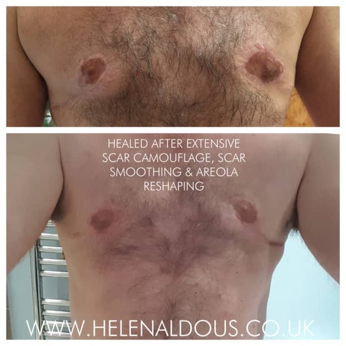 Fully Healed After Extensive Scar & Nipple Correction After Top Surgery. FTM