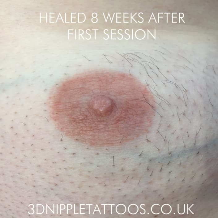 Healed Nipple After Feminisation of Areola. MTF