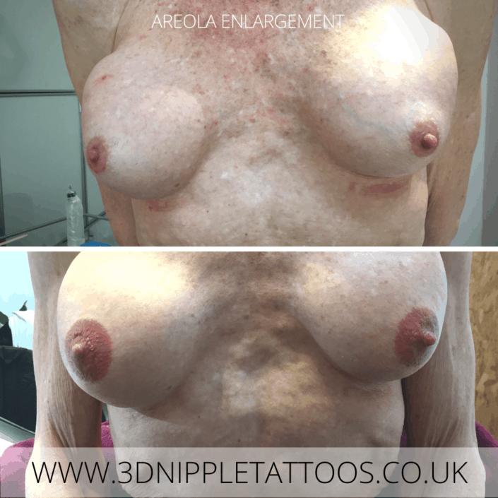Permanent Nipple Tattoo Areola Enlargement