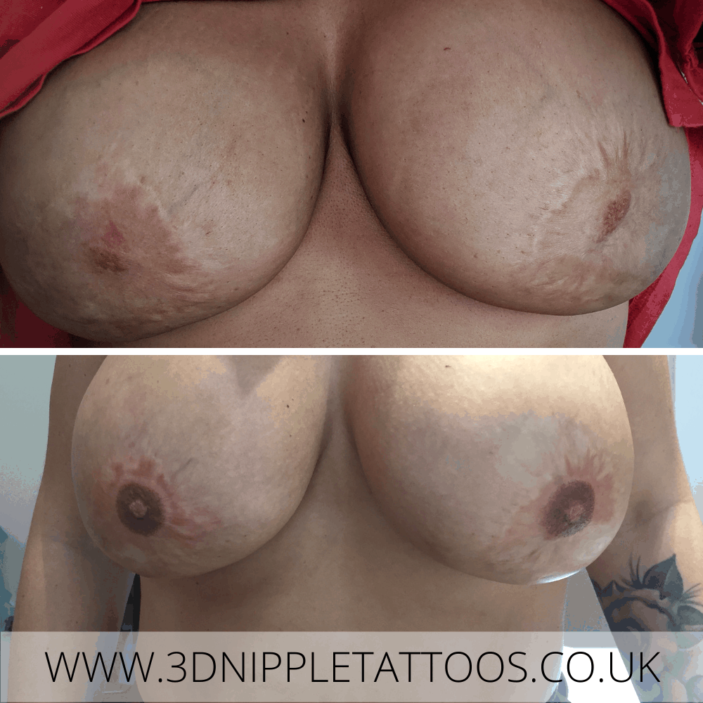 Areola Restoration after Doughnut Mastopexy Surgery Scarring