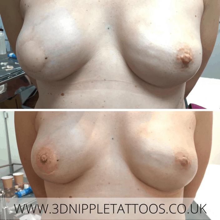 Nipple Tattoo After Unilateral Mastectomy
