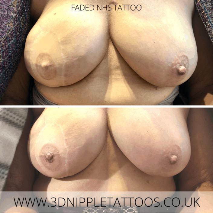 Faded NHS Nipple Tattoo Rescue