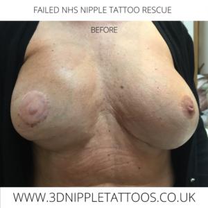 Do Nipple Tattoos Fade?