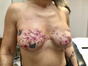 Mastectomy Tattoo Cherry Blossom