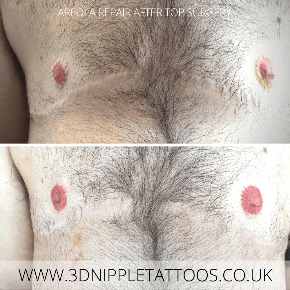 Nipple Tattoo Restoration after Top Surgery