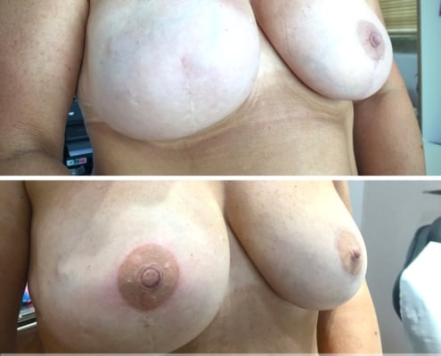Nipple Tattoo after Unilateral Mastectomy