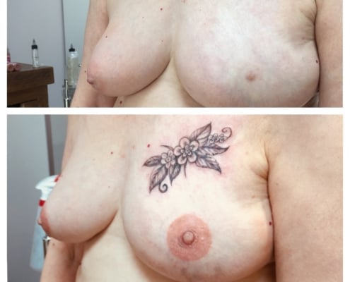 Nipple Tattoo and Scar Cover Up Tattoo