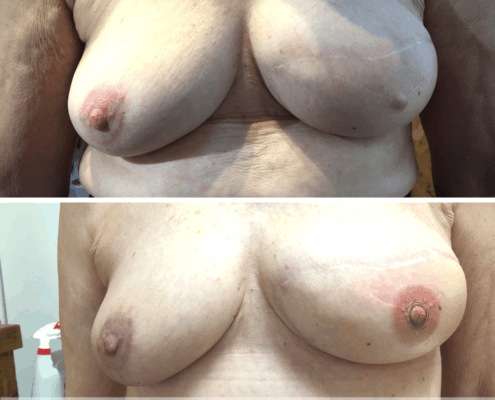 Nipple Tattoo after Breast Cancer & Nipple Reconstruction