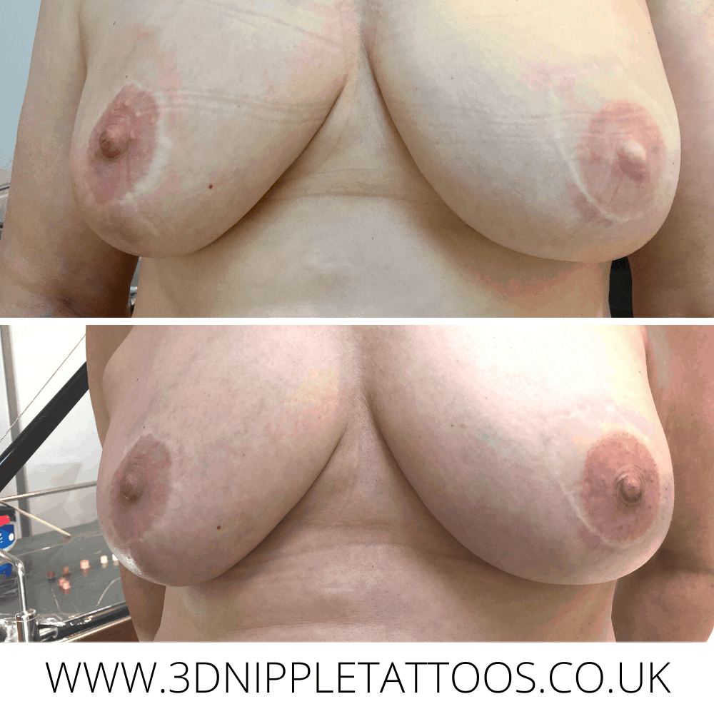 Nipple Tattoo Over Faded Cosmetic Tattoo