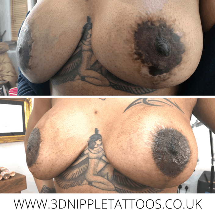 Areola Repair Tattoo