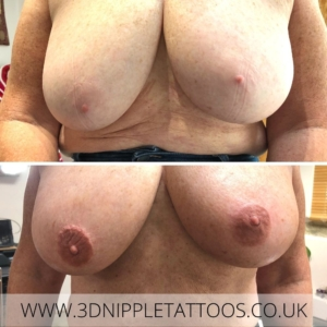 Colouring areola with no natural pigment