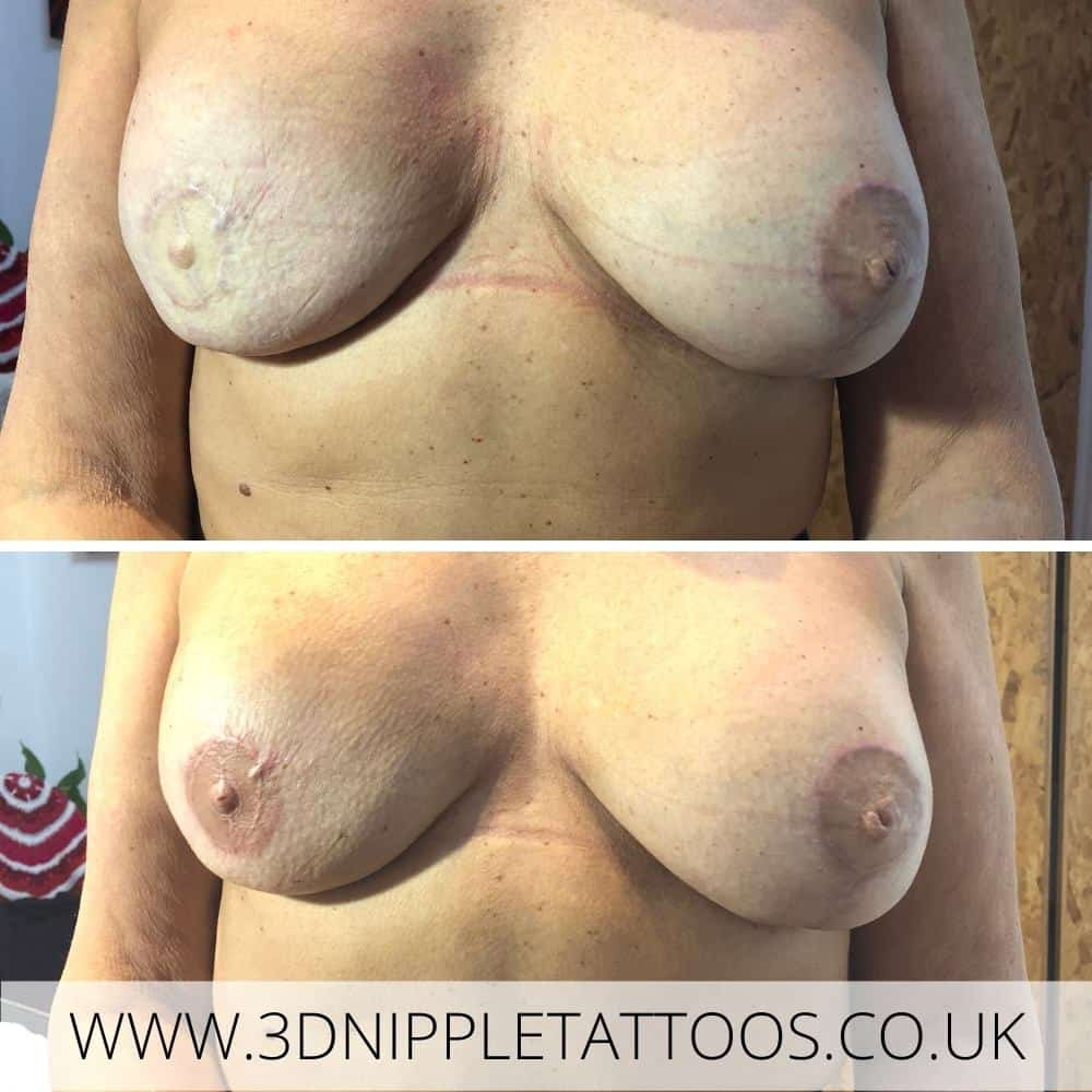 Nipple Tattoos after Breast Cancer - Everything You need To Know