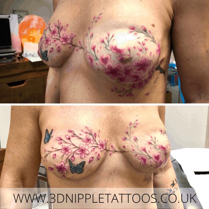 Cherry Blossom Mastectomy Tattoo